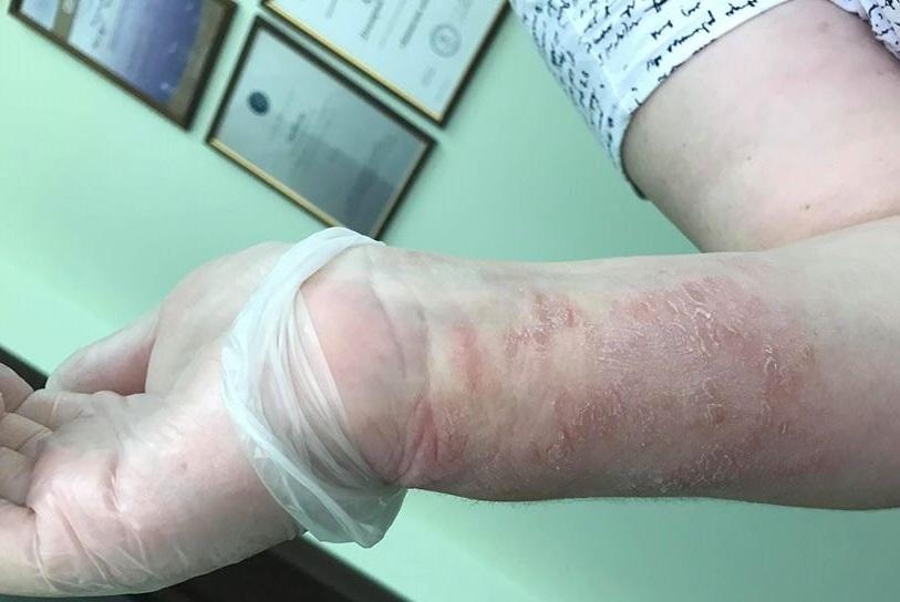 Последствия ношения перчаток