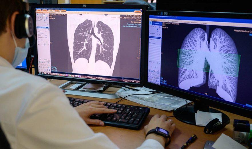 КТ-диагностика лёгких