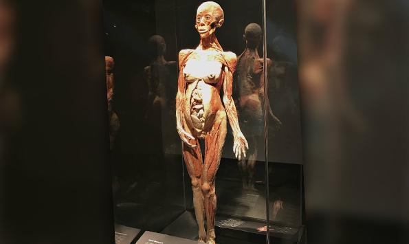 Экспонат выставки «Мир тела»